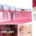 cay-ghep-rang-implant-trang-32-1433912483768[1]